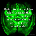 Ways Brain Tissue Research Helps Us Understand ASD